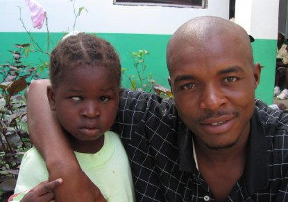 Haiti - child with right esotropia before surgery